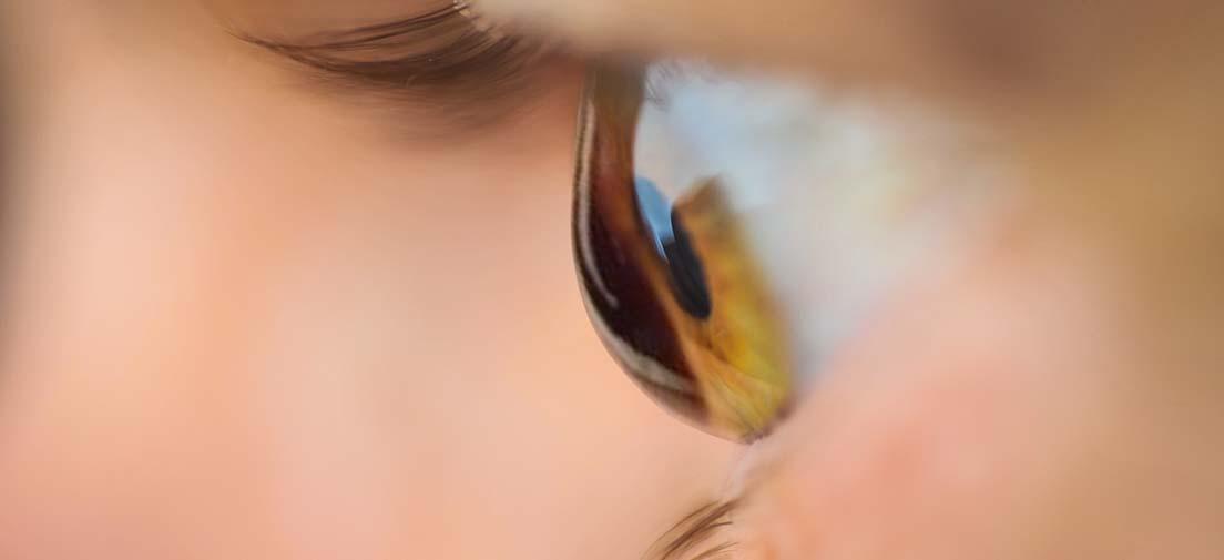 Adelgazamiento de la cornea